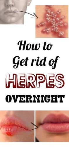 18 ways to get rid of a cold sore overnight cold sore remedies how to get rid of herpes overnight ccuart Images
