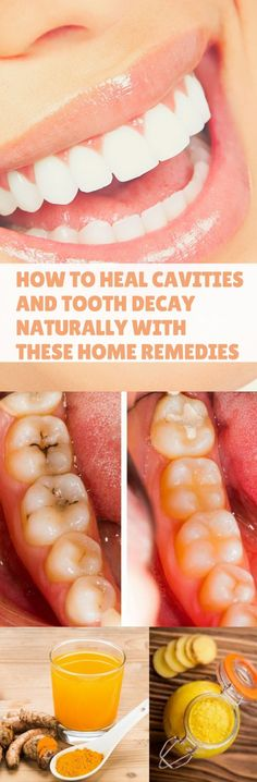 How to Heal Cavities and Tooth Decay Naturally with These Home Remedies #healing