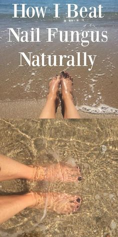 The natural way to fight and win against nail fungus. Get your nails ready for the beach again! http://blog.astilife.com/restore Start your treatment now and get your gorgeous nails back.