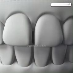 Upper Lower Tooth Simulation Braces(BUY 1 GET OFF) - The most beautiful nail models Dental Braces, Teeth Braces, Dental Implants, Dental Care, Teeth Shape, Hair Up Or Down, Stained Teeth, Perfect Smile, Types Of Nails