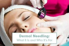 How to use dermal needling!!!