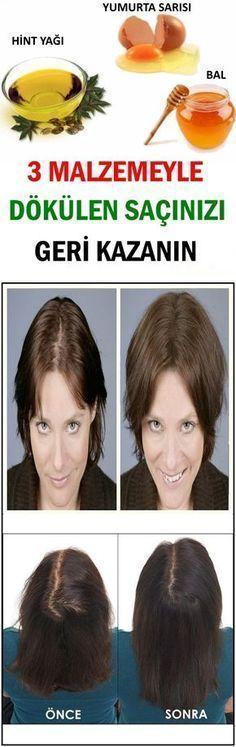 3 Malzemeyle Dökülen Saçınızı Geri Kazanın #Güzellik