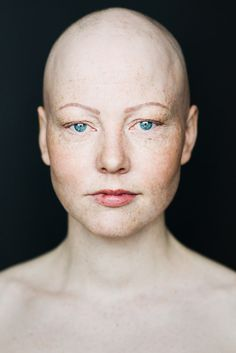 Baldvin: I Photograph Women With Alopecia To Break Gender Stereotypes   Bored Panda