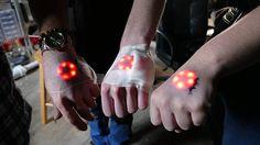 最近のバイオハッカーのトレンド:皮膚の下にLEDライトを埋め込む