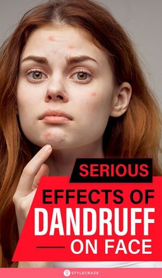 Serious Effects Of Dandruff On Face: You can learn everything you ever wanted to know about how and where do the flakes spread, how to get rid of them at home, and if or when you should consult your doctor. Because if we don't discuss the itchy and gross dandruff, we are not going to learn to deal with them, right? #SideEffects #Dandruff #Skincare #HairCare How To Get Rid, How To Find Out, Dandruff, Side Effects, Flakes, Hair Care, Learning, Blog, Skincare
