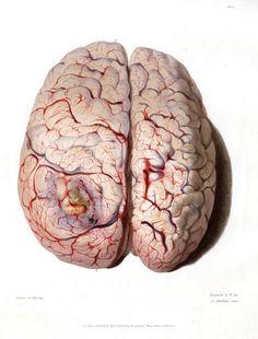 Medical-Pathology-Medical-Anatomical-Superior-half-of-diseased-brain.jpg (750×986)