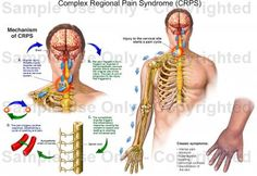 CRPS can affect one limb it can mirror into the opposite limb. CRPS can move to other parts of the b Chronic Illness Quotes, Neck Surgery, Human Anatomy Drawing, Complex Regional Pain Syndrome, Crps, Important Facts, Chronic Pain, Taking Pictures, Medical