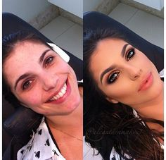Antes e Depois Before and After