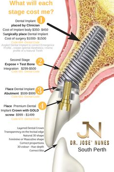 , Garden City residents needing affordable dental implants and quotes (prices) for. , Garden City residents needing affordable dental implants and quotes (prices) for each stage Listed here 4 stages takes place over 3 to 6 months. Dental Implant Surgery, Teeth Implants, Cosmetic Surgery Prices, Affordable Dental Implants, Dental Hospital, Dental Facts, Ignorant, Dental Bridge, Dental Services