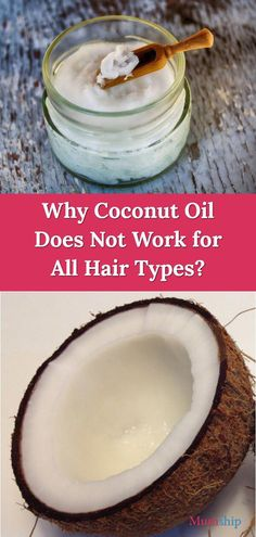 dandruff itchy scalp natural remedy, points to know when you have dandruff or scratchy scalp as well as the best All-natural ways to treat it on your own Dandruff Remedy, Scalp Treatments, Clear Hair, Getting Rid Of Dandruff, Coconut Oil Uses, Clarifying Shampoo, Itchy Scalp, Healthy Scalp