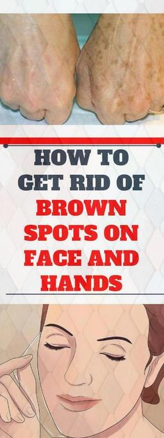 Famous Dermatologist Revealed: Remove Brown Spots On Face And Skin With This Simple Trick! Sun Spots On Skin, Black Spots On Face, Brown Spots On Hands, Spots On Legs, Dark Spots, How To Get Rid, How To Remove, Sunspots On Face, Spots On Forehead