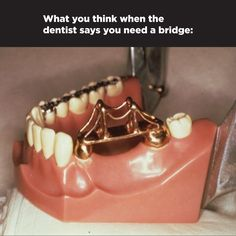 DESPITE THE VISUAL THAT COMES TO MIND a dental bridge is made up of two or more…