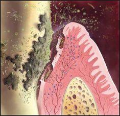 gum disease treatment cost.png (348×336)