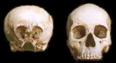 """(3/3) Another ancient skull that has caused a lot of controversy in recent years is the so-called """"Starchild Skull"""". The following is a photo of the """"Starchild Skull"""" compared with the skull of a normal human… Obviously the physical differences are very great. But the Starchild Project wanted to go even farther. They wanted to do extensive DNA testing on the skull to determine how close to human this creature actually was… For 13 years we at the Starchild Project have known the Starchild…"""