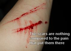 Self-harm is a HUGE red flag that the child is being abused in some way by someone.  This cannot be ignored.