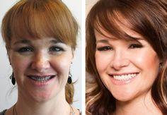 View below and after photos of actualcosmetic surgeryandoral/maxillofacial surgerypatients at Robinson Cosmetic Surgery, LLC.