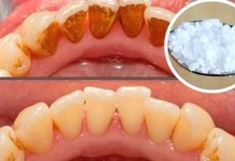 Video shows 3 best ways to remove teeth plaque or tartar at home without visiting a dentist for your dental cleaning. Remedies For Strong and White Teeth: ht. Homemade Mouthwash, Tartar Removal, Best Teeth Whitening, White Teeth, Oral Health, Public Health, Health Heal, Get Skinny, Real Simple