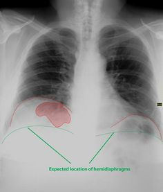 Chilaiditi syndrome is the anterior interposition of the colon to the liver reaching the under-surface of the right hemidiaphragm with associated upper abdominal pain; it is one of the causes of pseudopneumoperitoneum. Colonic gas in this position may be misinterpreted as true pneumoperitoneum resulting in further imaging, investigation and treatment that is not required. http://radiopaedia.org/articles/chilaiditi-syndrome