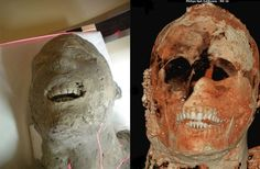 The analysis revealed, among other facts, that the victims of Pompeii had very healthy teeth. Nearly 2,000 years after Mount Vesuvius buried Pompeii in ash and pumice, advanced imaging technology is bringing to life the victims of the devastating eruption.  The CT scanning of the remains has been made possible thanks to a technique devised in 1863 by the archaeologist Giuseppe Fiorelli that produced plaster casts of bodies and objects buried under the ash.