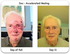 Fantastic results!