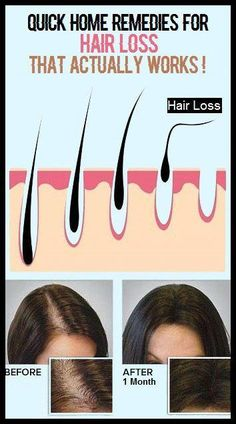 Quick Home Remedies for hair Loss That Actually Works! #ArganOilForHairLoss