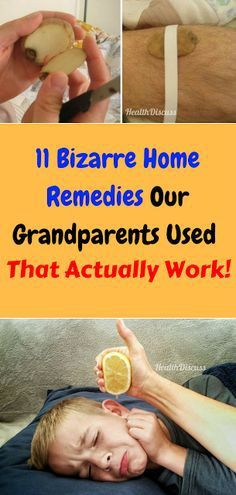 11 bizarre home remedies our grandparents used that actually work! - Health and Wellness Tips Holistic Remedies, Natural Home Remedies, Natural Healing, Herbal Remedies, Health Remedies, Sinus Remedies, How To Stay Healthy, Healthy Life, Healthy Living