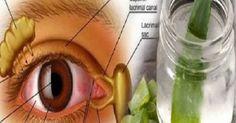 Πείτε αντίο στα γυαλιά σας και βελτιώστε την όρασή σας με αυτή τη καταπληκτική συνταγή!