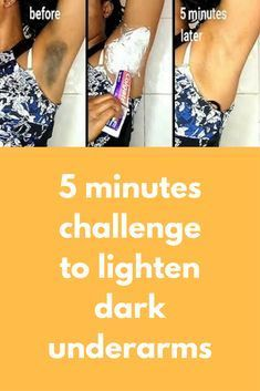 5 minutes challenge to lighten dark underarms Black armpit can reduce your confidence, especially if you wear a sleeveless shirt. Every woman crave to have fair and smooth underarms as other body parts. Underarm skin which becomes black can be caused by frequent shaving underarm hair, use deodorant roll on that is not suited to the type of skin, dead skin cell …