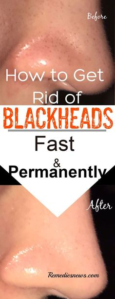 How to Get Rid of Blackheads Fast 9 Effective Natural Remedies is part of Blackhead remedies - Dermatologists skin care tips on how to get rid of blackheads fast on your nose, chin, back, and forehead by cleansing,exfoliating and Skin gritting Face Mask For Blackheads, Get Rid Of Blackheads, Removal Of Blackheads, Remedies For Blackheads, Natural Home Remedies, Herbal Remedies, Health Remedies, Holistic Remedies, Dermatologist Skin Care