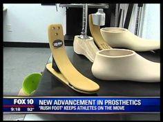 FOX 10 KSAZ New Advancement in Lower Limb Prosthetics - The RUSH Foot