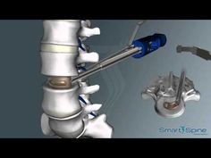 Roboz Tech , Orthopedic Cage L & Fixation Hand Surgery, Spine Surgery, Hernia, Spine Health, Discus, Neck Pain, Dental Implants, Health Tips, Health Care