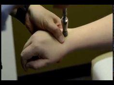 Dr Manfred Alkhas Hand Wrist Pain Treatment