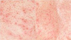 Truque com água quente que você deve fazer antes de se depilar para evitar bolinhas - Receitas e Dicas