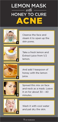How to Get Rid of Acne with Lemon - DIY Natural Home Remedies Honey has antibacterial, antioxidant and anti-inflammatory properties that clear the bacteria and soothes the inflammation caused due to pimples. This combination prevents the breakouts from fo Natural Acne Treatment, Natural Acne Remedies, Home Remedies For Acne, Skin Treatments, Face Treatment, Herbal Remedies, Doterra Acne, Pimples Remedies, Skin Tips