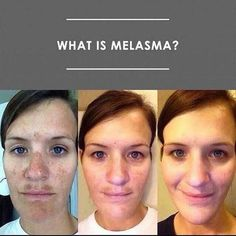 #Melasma ~ what is it?!? It's more common than you may realize! It's a skin condition that causes brown to gray-brown patches on the face. Most people get it on their cheeks, bridge of their nose, forehead, chin and above their upper lip. It also can appear on other parts of the body that get lots of sun, like forearms and our neck. Women are far more likely than men to get melasma. And hormones can trigger it. Many women complain of this during/after pregnancy. Hydroquinone is the gold…