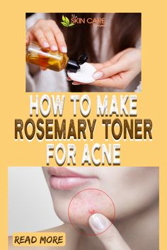 Love this DIY rosemary toner for acne. Check how to make yours at home. Find the full list of ingredients at theskincarereviews.com #rosemaryoiltoner #diytonerforacne Oily Skin Care, Face Skin Care, Healthy Skin Care, Skin Care Tips, Best Acne Products, Best Skincare Products, Skin Products, Clear Skin Routine, Clear Skin Tips