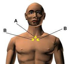 Acupressure Points for Relieving Coughing. - Points (A) -- Heaven Rushing Out Location: At the base of the throat in the large hollow directly below the Adam's apple. CV22 Points (B) -- Elegant Mansion Location: In the hollow below the collarbone next to the breastbone. KD27
