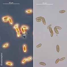 Contamination of urine with fungal spores (? HT L. Medical Laboratory Science, Med Student, Contrast, Medicine, Neon Signs, Bright, Queen, Education, The Originals