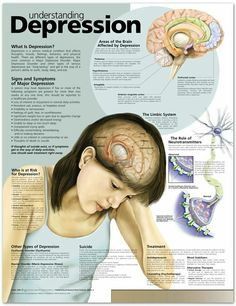 Understanding depression: What is depression? Who is at risk for depression? Areas of the brain Affected by depression; Signs and Symptoms of Major Depression; Types of depression; Depression Poster, What Is Depression, Depression Facts, Depression Symptoms, Depression Remedies, Mental Depression, Depression Help, Managing Depression, Explaining Depression