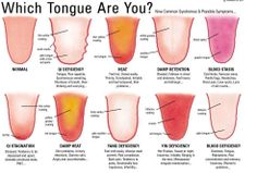 Traditional Chinese Medicine looks at the the tongue of the patient to determine how healthy or not they are. What does your tongue say about your health?