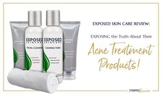 Find out why we didn't give this 5 stars #acne #exposedacne #acnetreatment