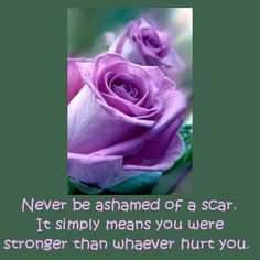 God's Creations You are strong and you are beautiful.  Don´t hide the scars of life.  They have made you what you are! See You at the Top