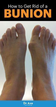 Are Those Cute Shoes Worth It? Bunion Symptoms & Causes + 5 Natural Treatments – Gonnee Lifestyle Health And Beauty Tips, Health And Wellness, Health Tips, Health Fitness, Beauty Tricks, Natural Treatments, Natural Cures, Natural Health, Health Remedies