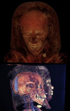 Mummy x-rays. ive seen this in real life. its amazing