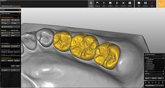 Software-module CAD/CAM Prettau® (fully anatomic)