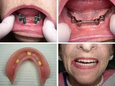 A denture is a removable replacement for when you are missing all of your teeth. If you place four #implants into the jawbone (mandible) the #denture snaps down very firmly. The denture will not slip or slide and you can eat as if you had all of your natural #teeth.