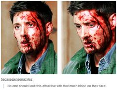 No one should look this attractive with that much blood on their face.