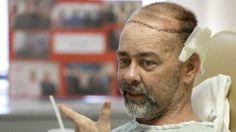 James Boysen, de 55 años, perdió hace casi 10 años parte del cráneo a consecuencia de un tratamiento para un tipo de cáncer poco común. Después de un largo proceso, acaba de convertirse en la primera persona del mundo en recibir un trasplante de cráneo y cuero cabelludo, en una intervención en la que además recibió un nuevo riñón y un páncreas.