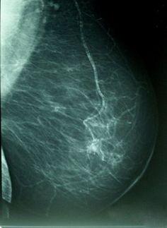 Un medicamento para el cáncer de la sangre pueden frenar la propagación de las células del tumor de mama