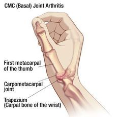 Arthritis Remedies Hands Natural Cures - I think I have thumb arthritis. From Oh My Arthritis Arthritis Remedies Hands Natural Cures Yoga For Arthritis, Juvenile Arthritis, Natural Remedies For Arthritis, Arthritis Exercises, Rheumatoid Arthritis Treatment, Knee Arthritis, Arthritis Relief, Types Of Arthritis, Home Remedies